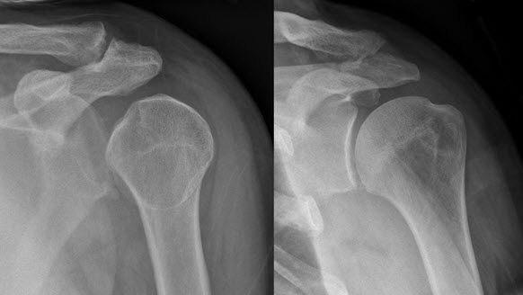 shoulder dislocation x-ray